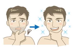 青髭対策ビフォーアフター